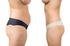 weight loss hypnotherapy and hypnosis Paisley